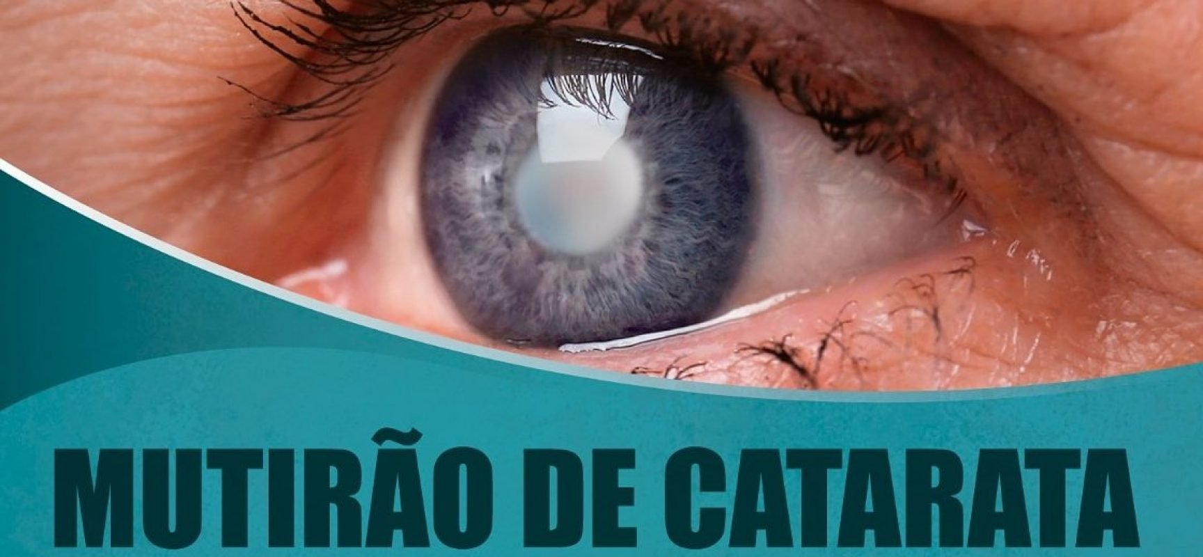 Mutirão de Cirurgias de Catarata vai iniciar em 29 de agosto