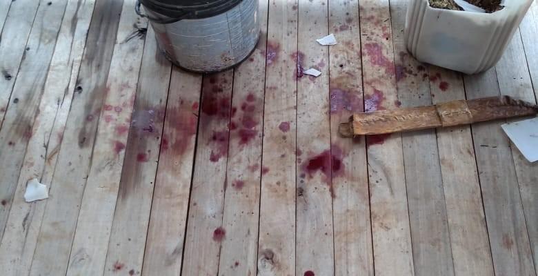 Homem teve membro sexual mutilado em tortura na cidade de Machadinho RS