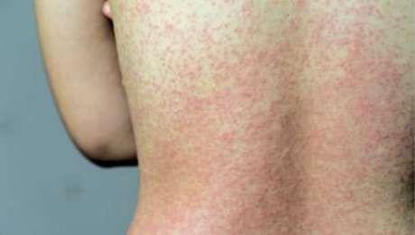 Sobe para oito o número de casos confirmados de sarampo em Concórdia