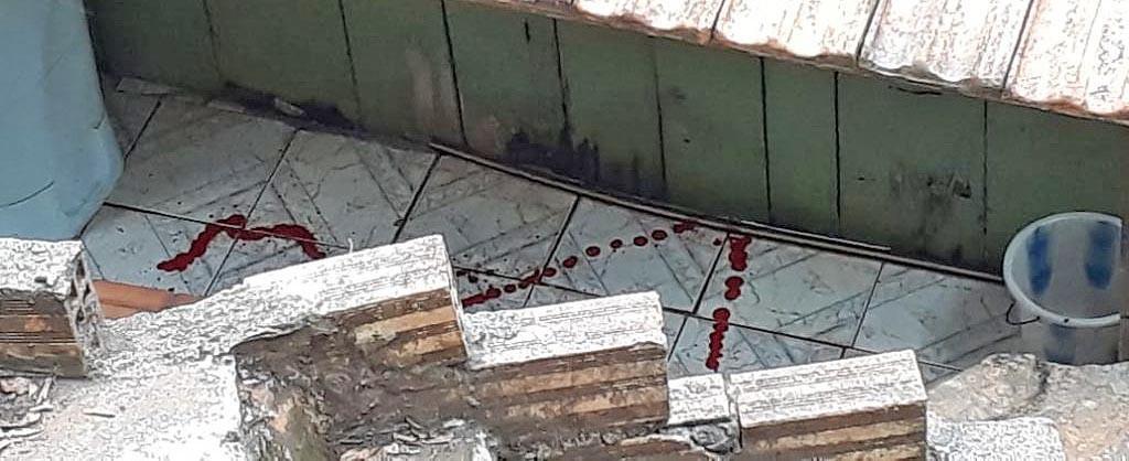 Homem e mulher atingidos por disparos de arma de fogo em Seara estão na UTI